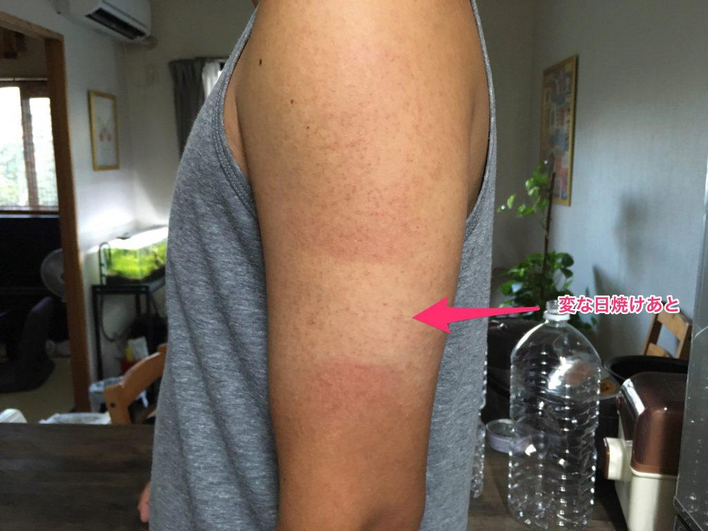 二の腕 ブツブツ ザラプロ 二の腕のブツブツや黒ずみに効果があるザラプロAの特徴とは
